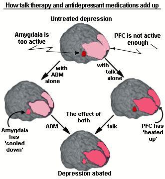 What Is Amygdala? - Essay by Shinashina